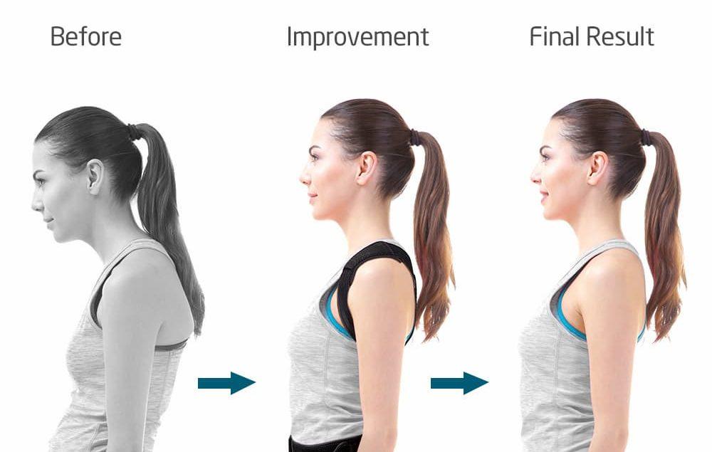 korigjues shpine-Posture-Corrector-1